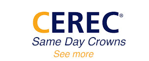 Cerec-toronto-same-day-crowns