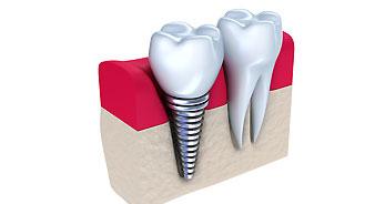 Dental-Impant
