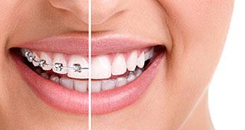Orthodontics-Toronto
