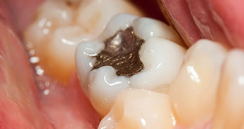dental-fillings-toronto